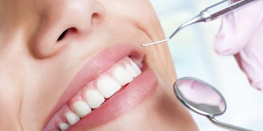 Profiláxis Dental